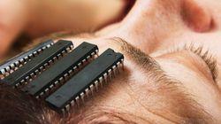 Des implants dans le cerveau pour améliorer la