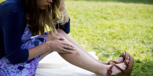 Piqûre d'insecte : tique, moustique, araignée... comment ...
