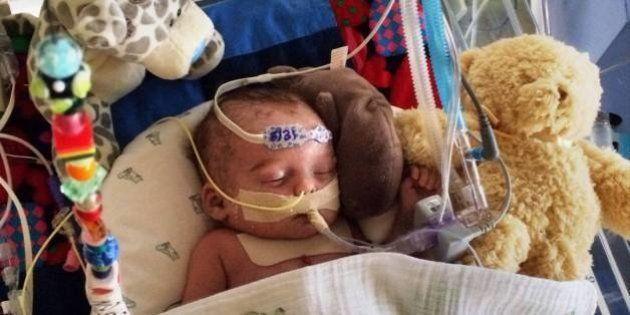 Facebook rejette une photo d'un bébé hospitalisé, jugée