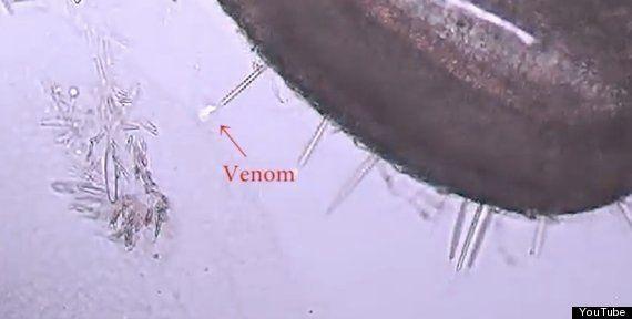 VIDÉO. Piqûres de méduse: pourquoi font-elles si