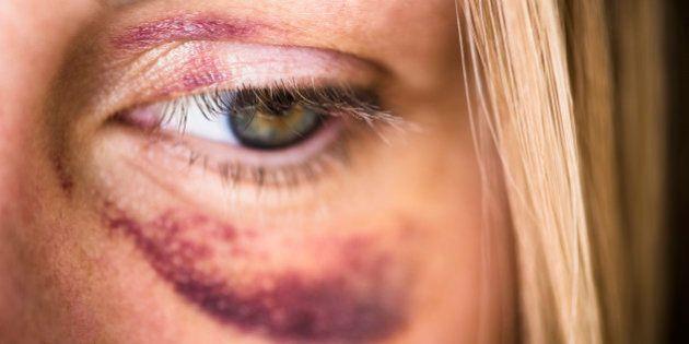 Une femme sur trois a déjà été victime de violences conjugales dans le
