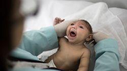 Pour la première fois en Europe, un bébé atteint de microcéphalie due à Zika est