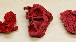 L'impression 3D a sauvé la vie de ce