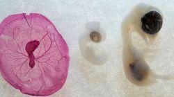 Des scientifiques chinois ont modifié génétiquement des embryons