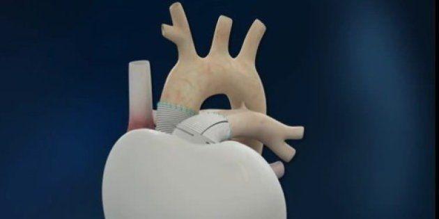 Coeur artificiel implanté en France: le malade ayant bénéficié de l'implantation est
