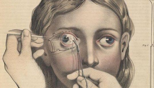Attention, ces planches anatomiques des siècles passés vont vous