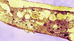 La syphilis est-elle une maladie du présent ou du