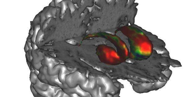 La recherche sur la maladie de Parkinson en France: un modèle de