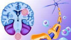Sclérose en plaques: une partie de la composante génétique de la maladie