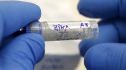 Le Texas annonce un cas de transmission du virus Zika par voie