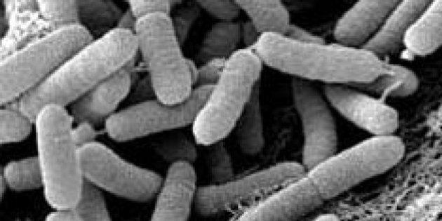 À cause de la bactérie xylella fastidiosa, le prix de l'huile d'olive a augmenté de