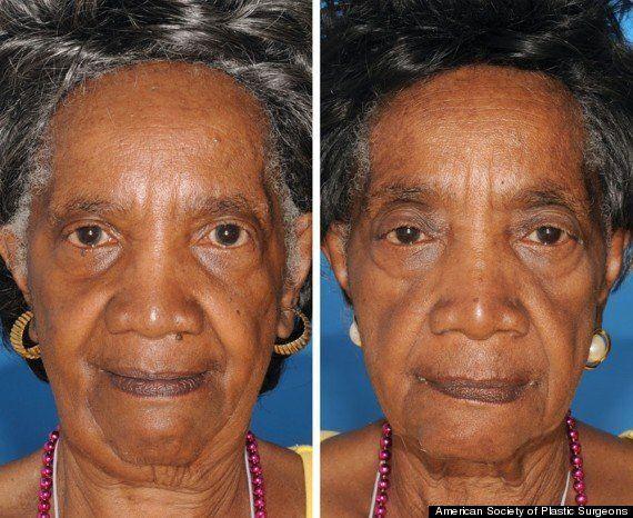 PHOTOS. Vieillissement de la peau à cause du tabac: voit-on la différence sur ces