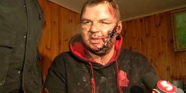 Ukraine : un opposant enlevé et torturé risque d'être