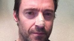 Hugh Jackman exhibe son cancer (bénin) de la