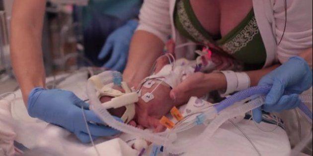 VIDÉO. La première année de vie d'un bébé prématuré de 700 grammes émeut le