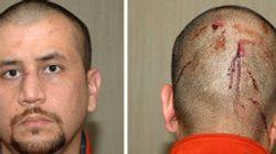 Des traces de cannabis retrouvés dans le corps de Trayvon