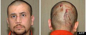 Affaire Trayvon Martin: du cannabis retrouvé dans le corps de la