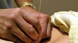 Médecine chinoise, hypnose et acupuncture entrent à