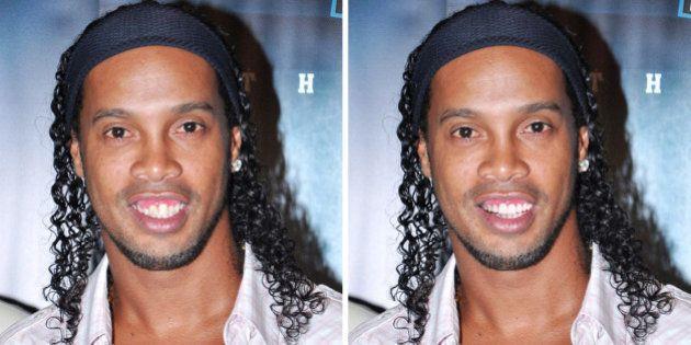 Les nouvelles dents de Ronaldinho: le joueur cède à la chirurgie
