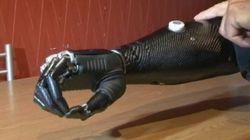 Le bras bionique qui va changer la vie des