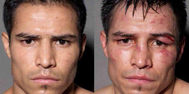 PHOTOS. Portraits de boxeurs avant et après le combat par le photographe Howard