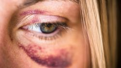 Hospitais terão 24h para notificar casos de violência contra a mulher, aprova