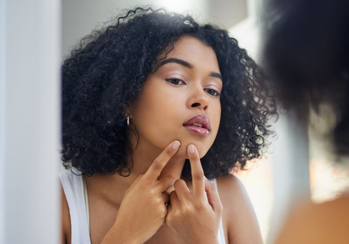 How To Prevent Acne Scars After Popping A Pimple | HuffPost Life