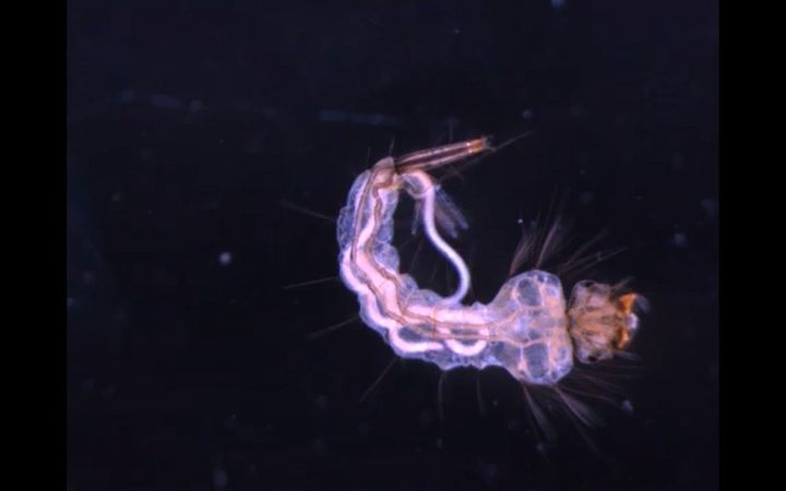 Parasitic Nematode, Or Roundworm, Called Most Numerically Abundant