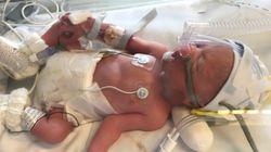 Πορτογάλια: Εγκεφαλικά νεκρή αθλήτρια γέννησε