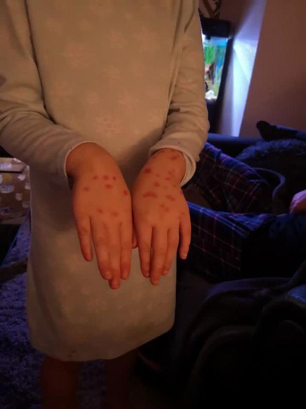 Βρετανία: Κοριτσάκι «έπαθε» ανεμοβλογιά με μαρκαδόρο για να μην πάει