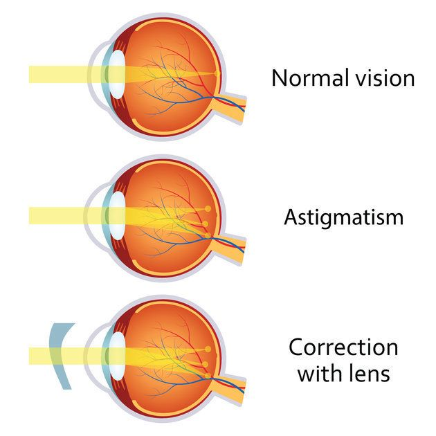 La cornée d'un astigmate est ovale, tandis que celle d'un non-astigmate est plus