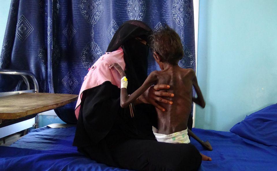 Πώς είναι να είσαι μητέρα στην Υεμένη. Εκεί που «τα παιδιά πέφτουν σαν τα φύλλα» από τον λιμό και τις