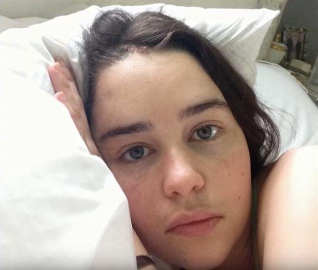 Emilia Clarke comparte las impactantes imágenes en el hospital tras sus operaciones