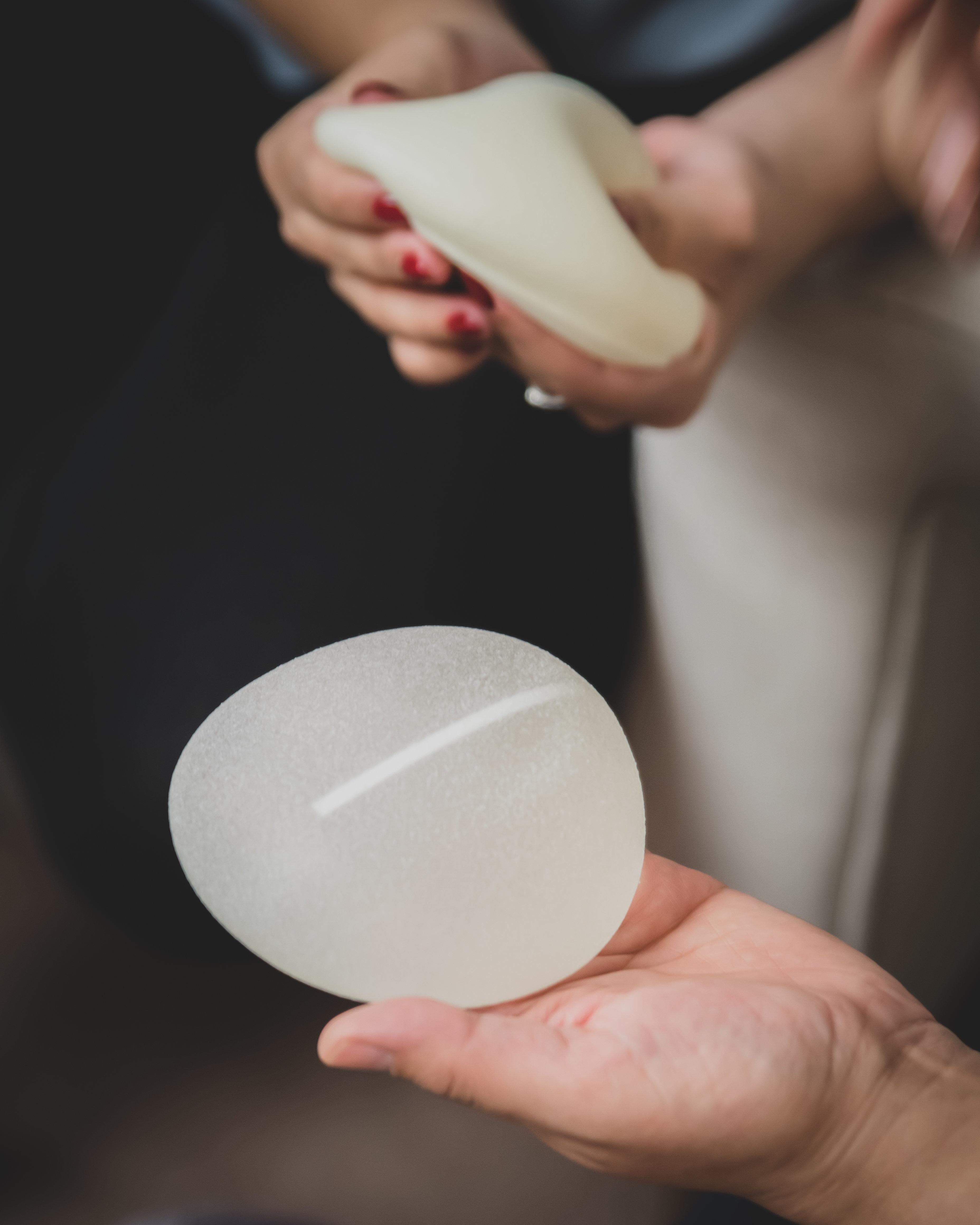 Les femmes porteuses d'implants mammaires bientôt recensées dans un registre