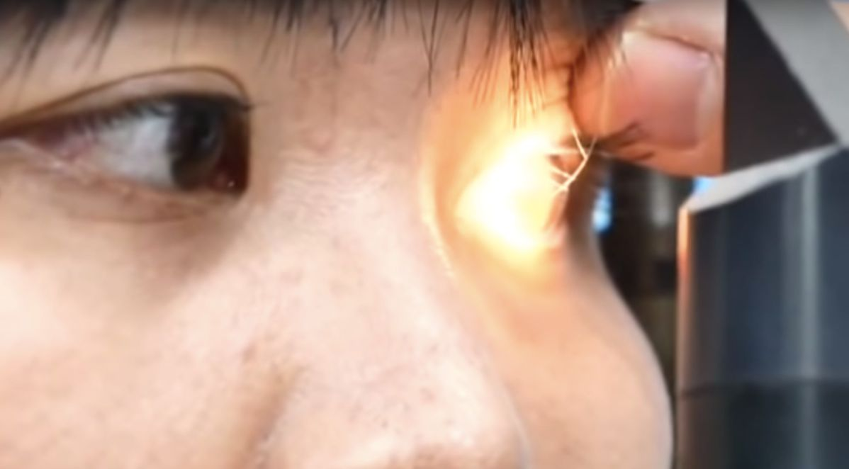 doctors remove 4 bees from woman's eye