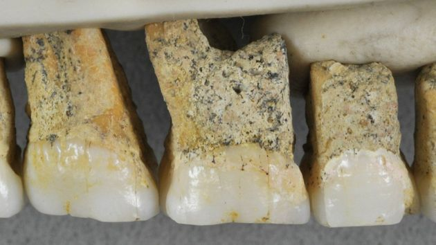 Homo Luzonensis: A New Species Of Extinct Human Has Been Discovered In The