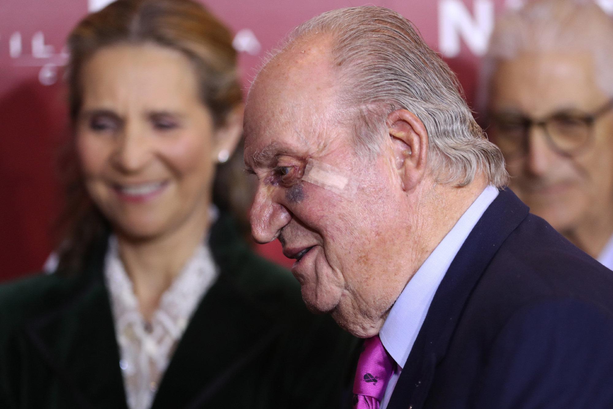 Juan Carlos I, sometido a la extirpación de una lesión
