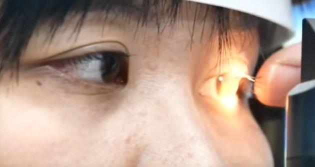 女性の目を診察する医師
