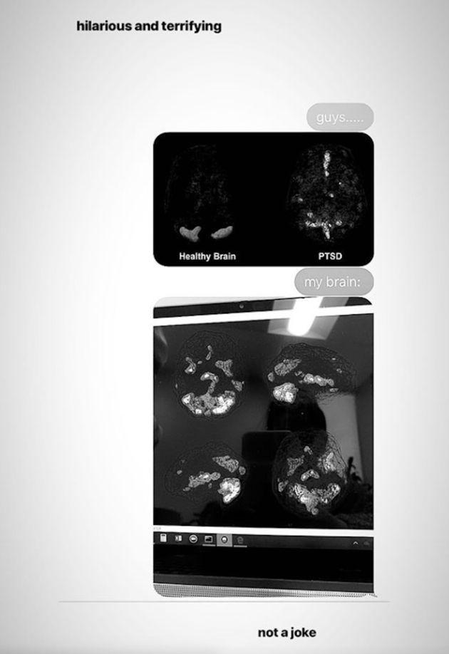 Ariana Grande dévoile des scanners de son cerveau après l'attentat de