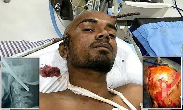 Ινδία: Μεταλλική βέργα του τρύπησε το κρανίο και δεν έχασε τις αισθήσεις