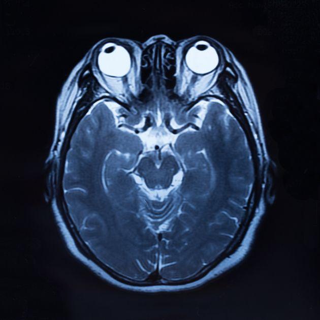 Escáner de un cráneo humano en el que se aprecian los ojos y el