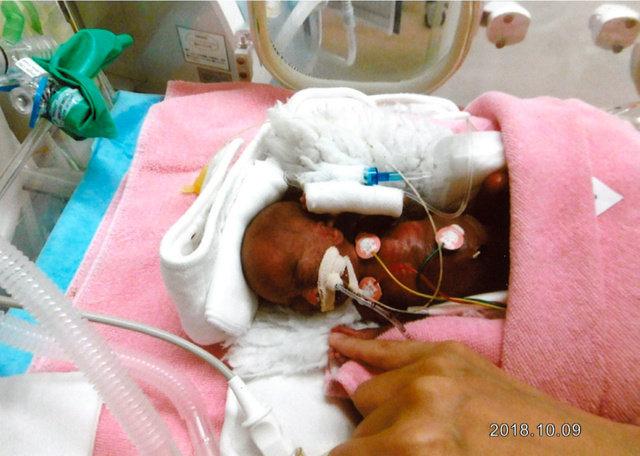 世界最小258gで生まれた赤ちゃん。3374gまで成長し、元気に退院へ