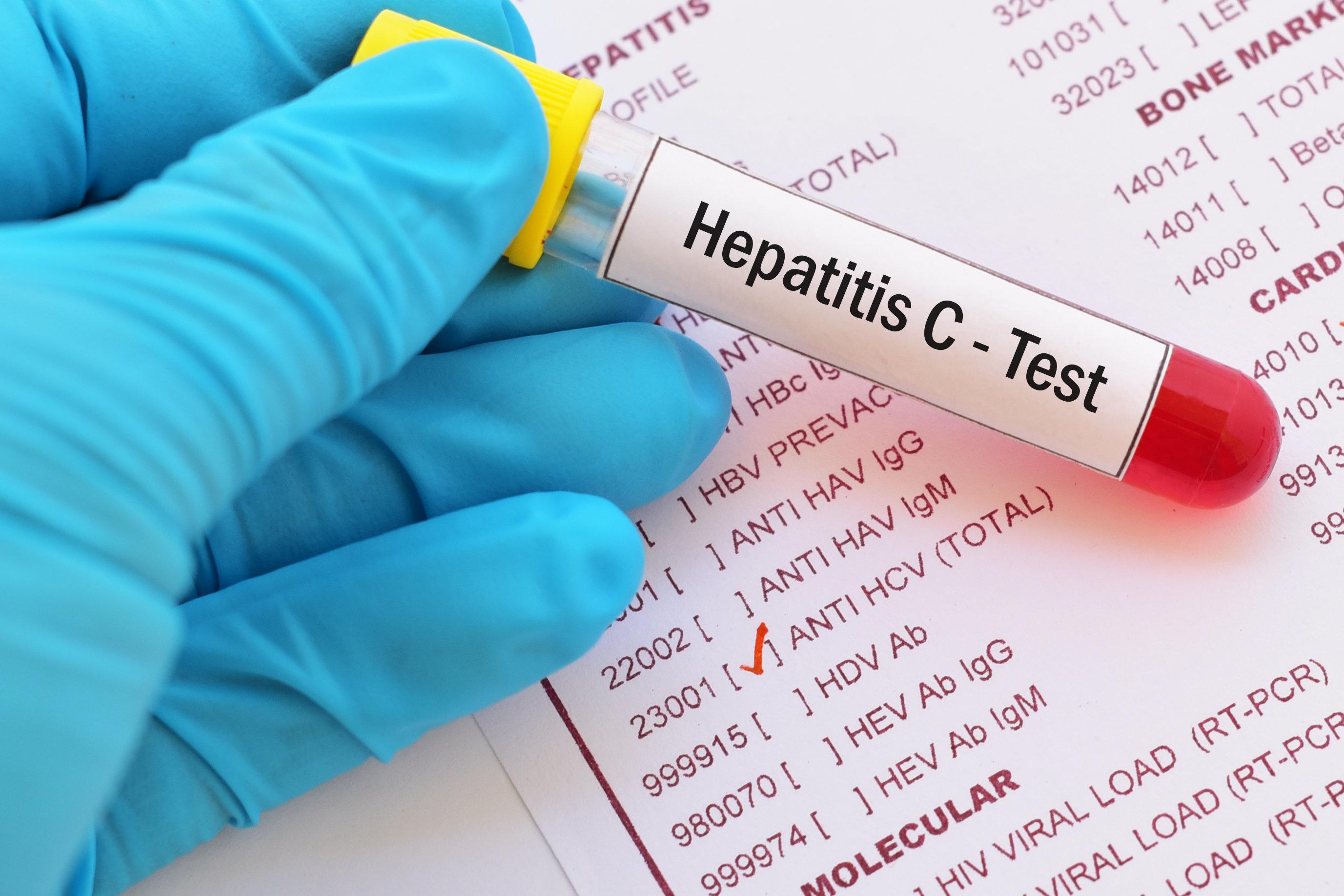 Test tube with blood sample for hepatitis C virus (HCV) test