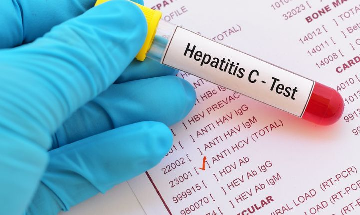 If left untreated, hepatitis C can cause liver damage, liver cancer, bleeding and even death.