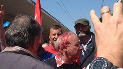 Il giallo su chi ha colpito il sindaco di Terni (FOTO