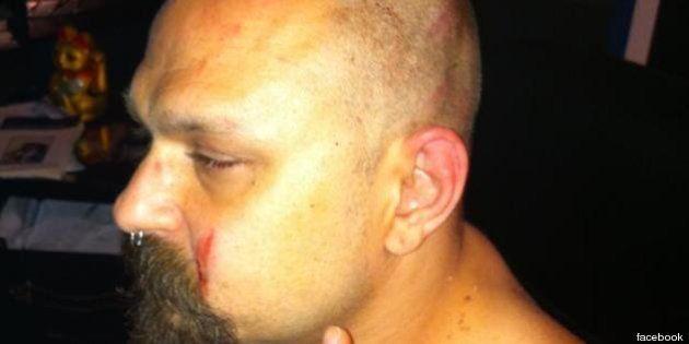 99 Posse: aggrediti dai fascisti. Il gruppo musicale colpito a Velletri. La denuncia di Zulu su Facebook