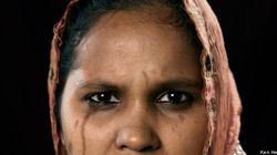 Bangladesh, sfigurati dall'acido