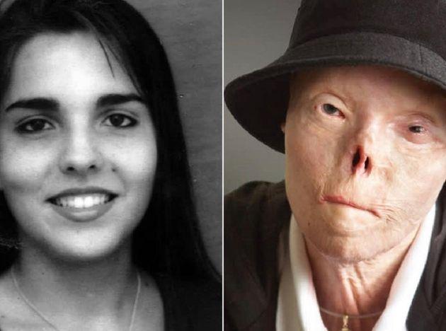 Πέθανε η γυναίκα με το παραμορφωμένο πρόσωπο που έδινε το πιο ηχηρό μήνυμα για την οδική