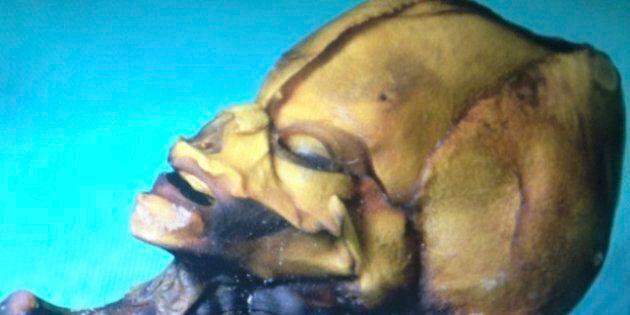 Steven Greer Gira Un Documentario Su Sirius L'alieno:
