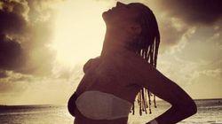 Heidi Klum bruciata dal sole. La foto della scottatura al fondoschiena fa il giro del web
